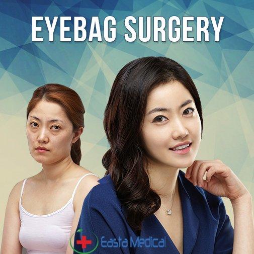 A Deep Insights on Asian Lower Eyelid Surgery
