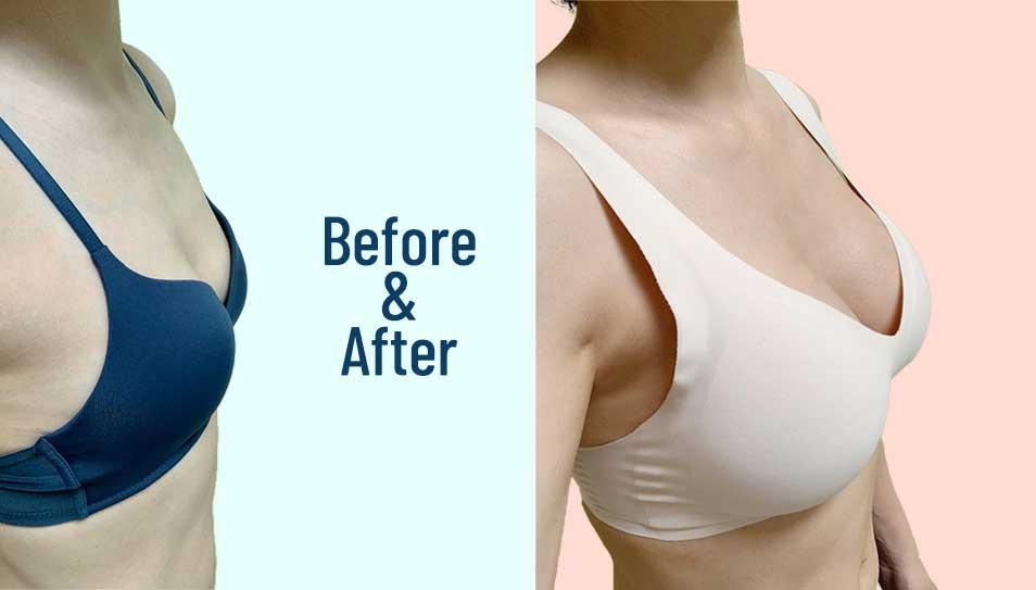 Breast Augmentation Surgery in Korea