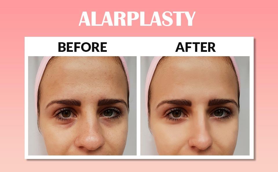 Alar Base Reduction Surgery in Korea